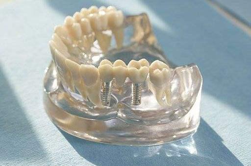 implant fiyatları türkiye
