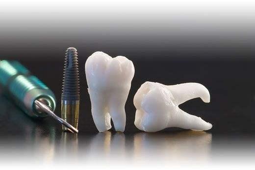 implant tedavisi türkiye