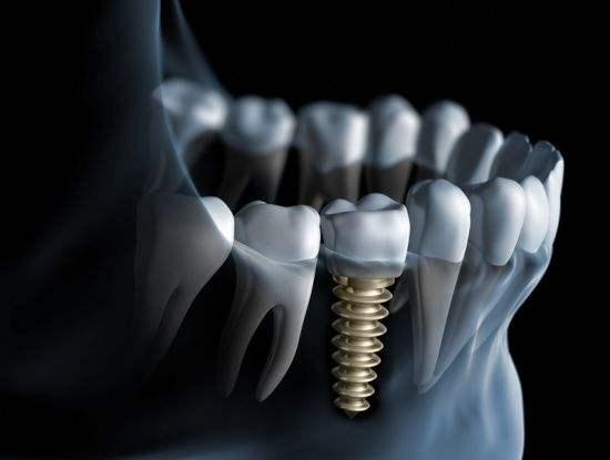 türkiye implant diş