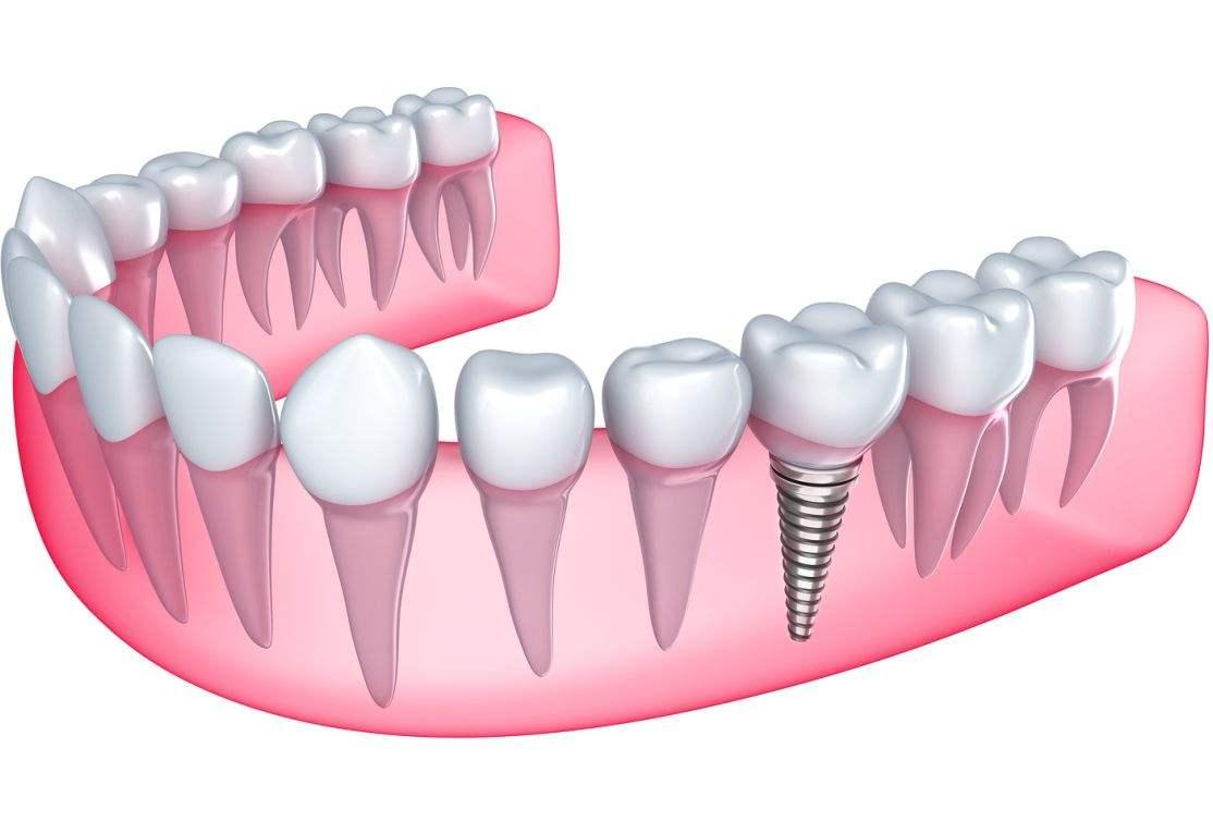 türkiye implant tedavisi