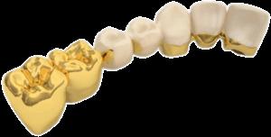 türkiye zirkonyum diş