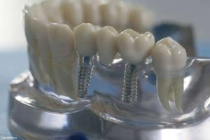 diş implant türkiye